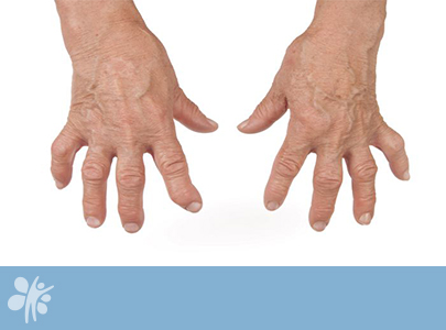 Ревматоиден артрит: всичко по темата – част 3